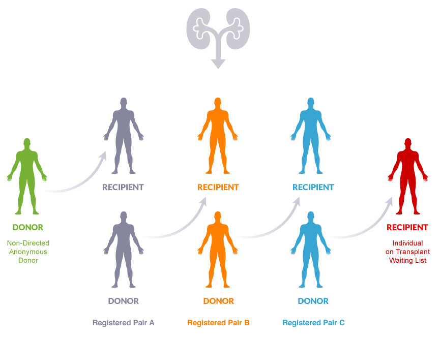 The Kidney Donor Domino Effect