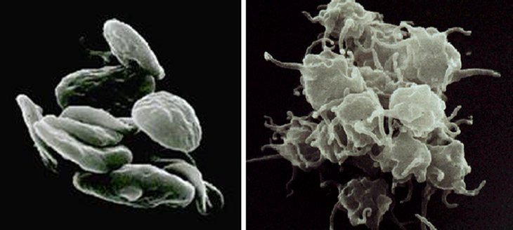 Resting platelets (left); activated platelets (right).