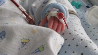 Infant hand with blood filled intravenous tube attached - the tube is almost the same size as the tiny baby's hand