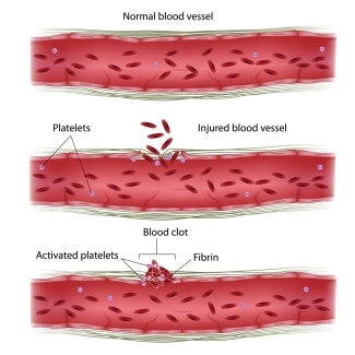 how platelets form clots