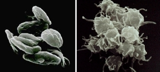 Resting platelets (left); inactivated platelets (right).