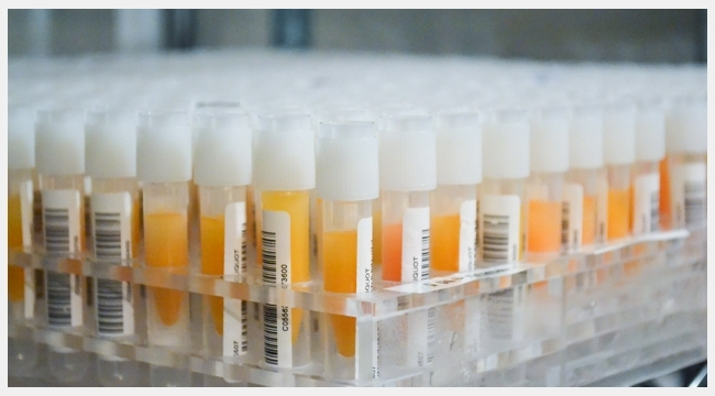 Thumbnail image of many vials of plasma